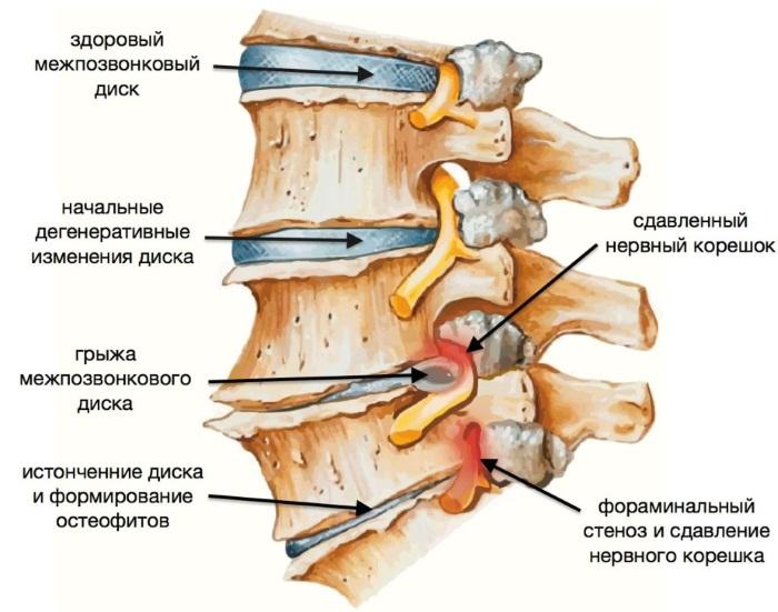 Боли в грудной клетке посередине. Что это при вздохе, движении, нажатии, отдает в горло, спину между лопатками, после сна, ком в горле. Причины, лечение народными средствами, неотложная помощь