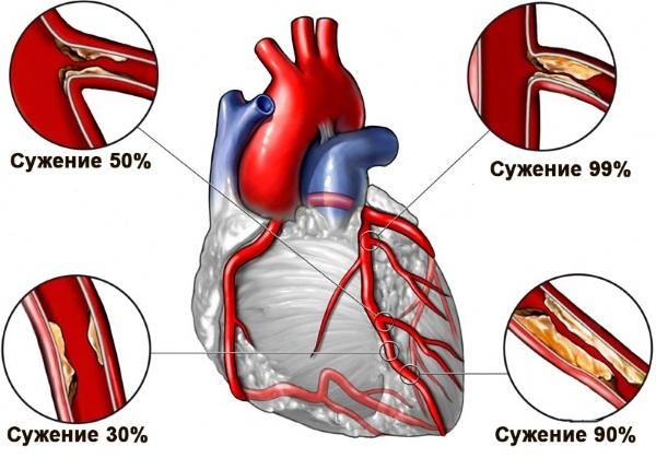 Боли в сердце или невралгия? Как отличить, распознать. Признаки, симптомы и лечение в домашних условиях. Диагностика заболеваний