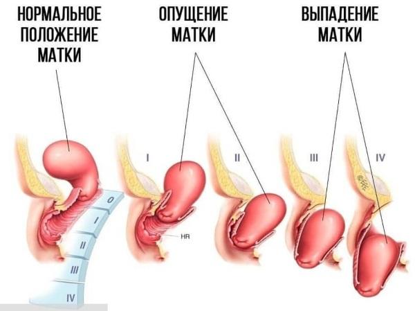Частые позывы к мочеиспусканию у женщин. Причины и лечение без боли, ложные, резкие, ночные, болезненные перед месячными, после родов