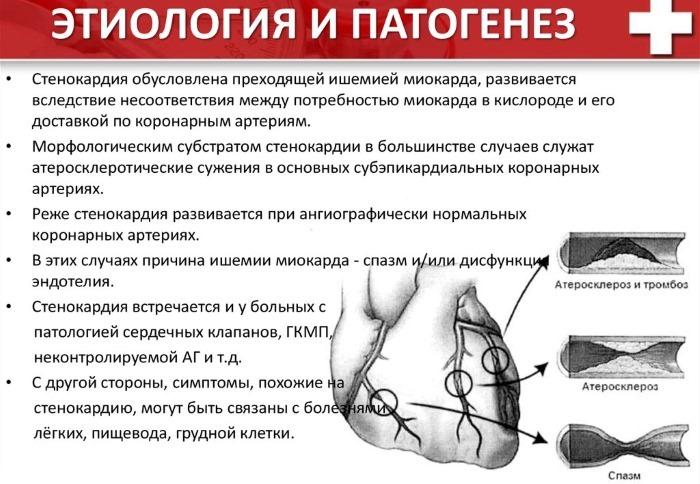 Что такое стенокардия. Симптомы, признаки, классификация. Чем опасна, диагностика и лечение