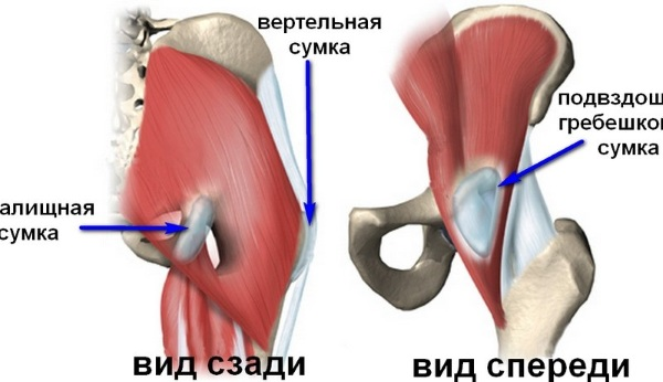 Что такое трохантерит тазобедренного сустава. Симптомы и лечение народными средствами, лекарствами. Гимнастика, питание, прогноз