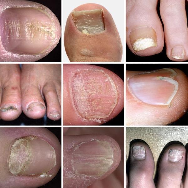 Дерматомикоз. Симптомы и лечение. Что это такое, возбудители, диагностика заболевания, мази для кожи
