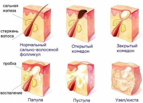 Детские болезни с высыпаниями на коже и лице, с и без температуры. Фото, признаки