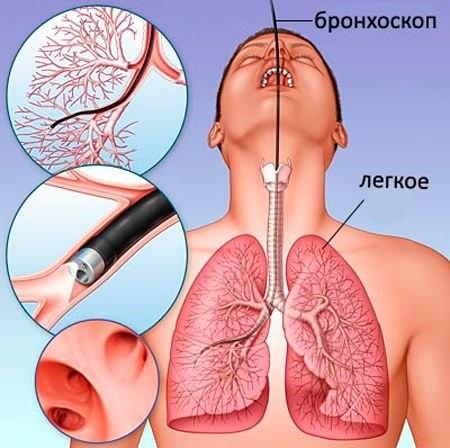Фиброзные изменения в легких. Что это, причины, фото диффузные, локальные, после пневмонии, послеоперационные. Как лечить