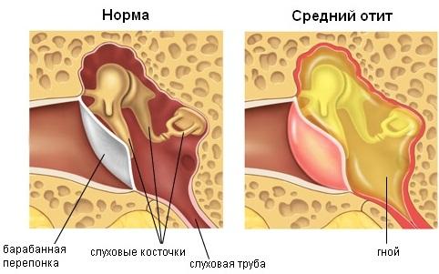 Гайморит. Симптомы и лечение у взрослых народными средствами, антибиотиками, капли