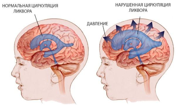 Гидроцефалия головного мозга у новорожденных. Что такое умеренная, заместительная, смешанная, наружная. Симптомы и лечение народными средствами, препараты