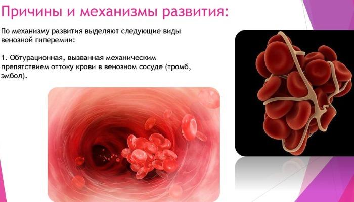 Гиперемия кожи. Что это такое: венозная, вакантная, артериальная, смешанная, реактивная. Манту, причины, первая помощь, лечение