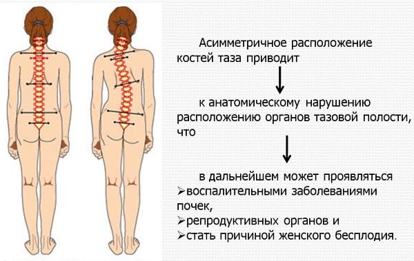 Искривление позвоночника у ребенка. Виды, фото, степени, чем опасно, как исправить, лечить шейный, грудной, поясничный, боковое. Массаж, упражнения, ЛФК