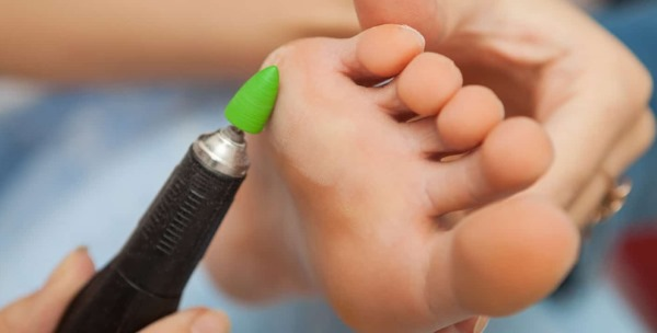 Как избавиться от натоптышей на ступне, подошве, пальцах, пятке, со стержнем. Лечение народными средствами, кремы для ног