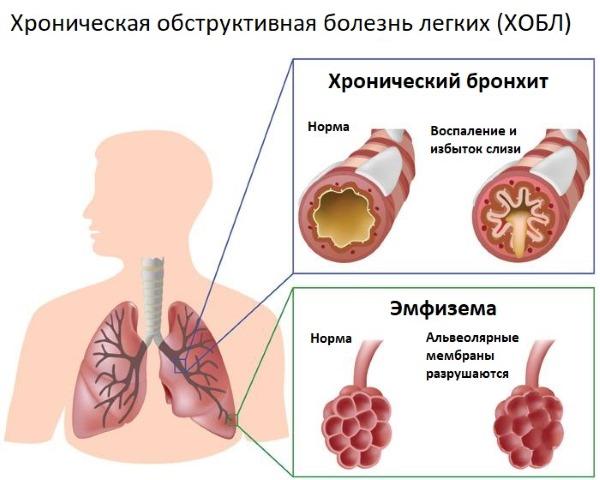 Кашель с кровью. Причины, что значит при бронхите, простуде, пневмонии, сильный у курильщика