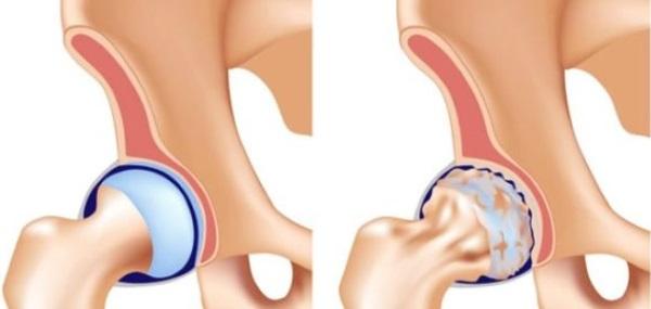 Коксартроз тазобедренного сустава. Симптомы и лечение. Хондропротекторы, ЛФК, диета, массаж