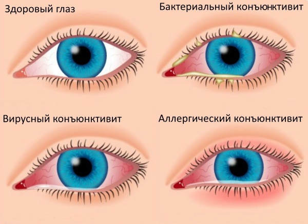 Капли для глаз от воспаления и покраснения, улучшения зрения. Список, цены, отзывы