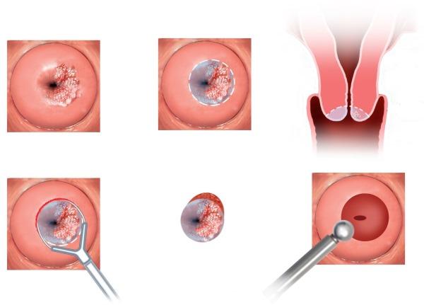 Кровь в середине цикла при приеме противозачаточных, без боли, запаха. Причины межменструальных выделений