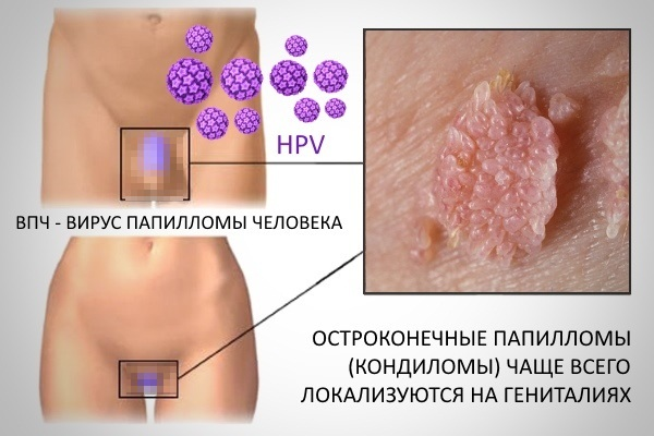 Лечение папиллом на шее, теле, лице, под мышками в домашних условиях. Препараты, чистотел, народные средства, мази