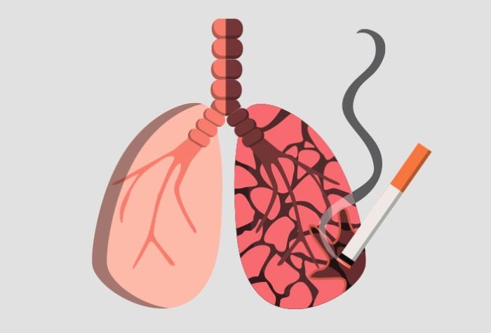 Картинки кашель туберкулез