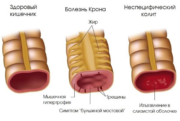 Лимфоциты повышены у взрослого. Причины, лечение после химиотерапии, родов, операции, антибиотиков, удаления селезенки