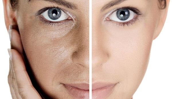 Лучшие средства от прыщей на лице для жирной, чувствительной, сухой кожи. Рейтинг, недорогие, эффективные, быстрого действия