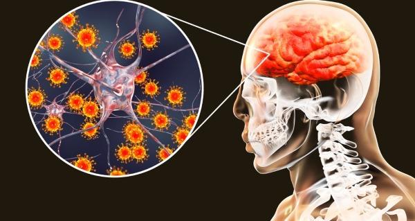 Признаки минингитовой инфекции у взрослых