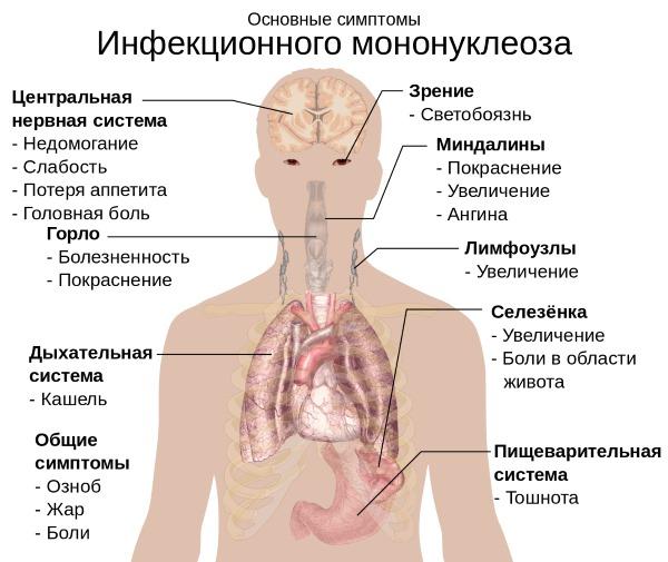 Мононуклеоз. Симптомы и лечение у взрослых: инфекционный, хронический, атипичный. Чем опасен, как передается, последствия