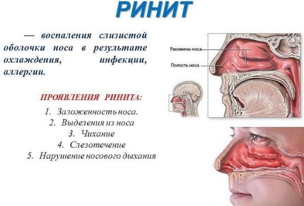 Натриум Муриатикум (гомеопатия). Инструкция по применению, цена, отзывы