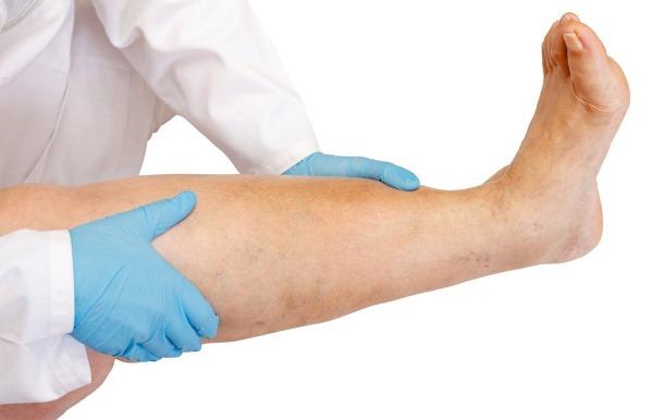 Паразиты в организме человека. Симптомы на коже, лечение народными средствами, медикаменты