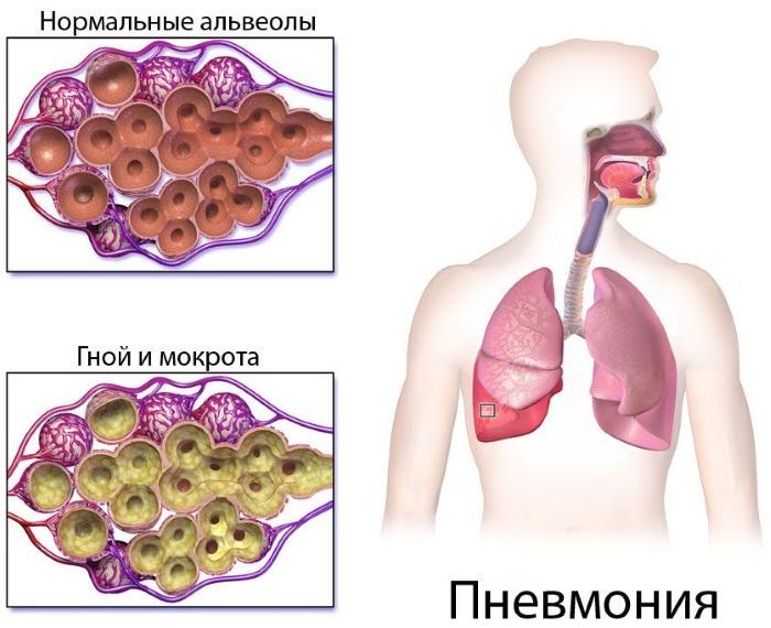 Пневмония. Симптомы, виды и лечение у взрослых. Препараты и народные средства
