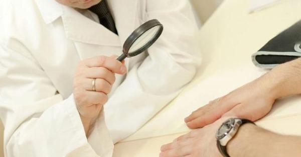 Потница у взрослых. Фото, симптомы и лечение. Препараты, народные средства, в домашних условиях