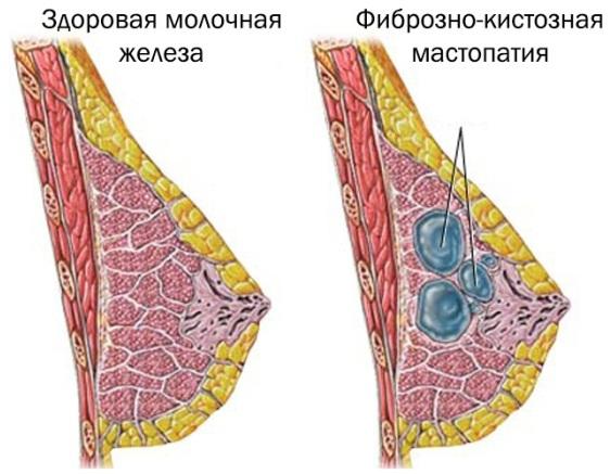 Причины гормонального сбоя у женщин. Как проявляется, лечение народными средствами, препараты