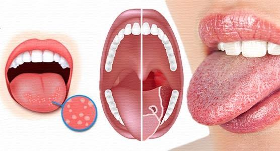 Привкус железа во рту. Что это значит, причины, от чего может быть по утрам, после кашля, на языке, губах, если тошнота