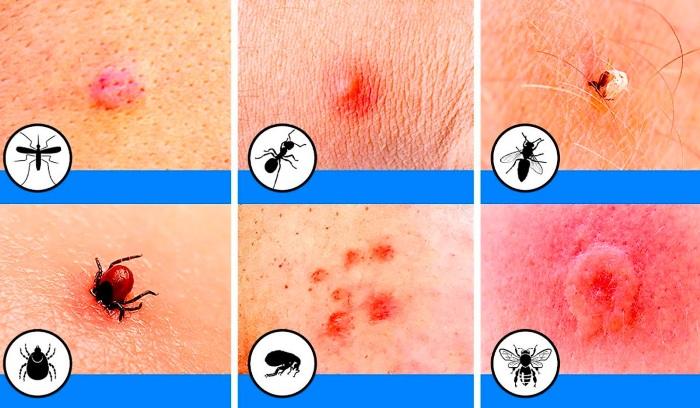 Пятна на коже красного цвета не чешутся, шелушатся, появляются и исчезают. Название болезни, причины, лечение
