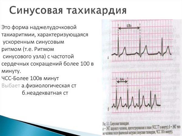 Сердечная аритмия: мерцательная, желудочковая, пароксизмальная. Первая помощь, симптомы и лечение: таблетки, народные средства