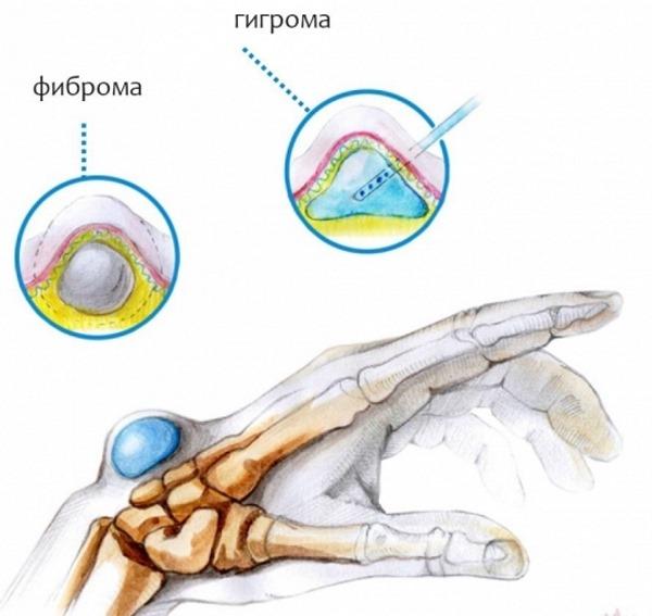 Шишка на запястье на руке сверху. Гигрома под кожей. Лечение народными средствами, мази, удаление лазером, хирургическим путем