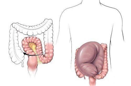 Сигмовидная кишка. Где находится и как болит, симптомы, заболевания, лечение и операция по удалению