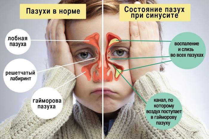 Синусит у ребенка. Симптомы и лечение народными средствами, препараты. Признаки хронического, гнойного, как определить