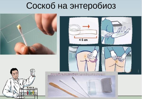 Соскоб на энтеробиоз у детей. Как берут, что показывает гемотест, сколько готовится, срок действия справки