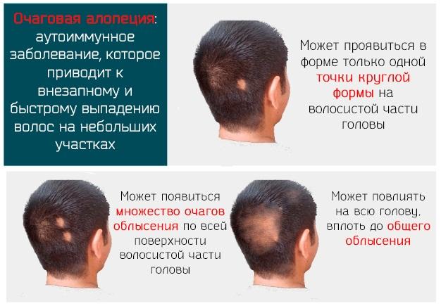 Средства от выпадения волос у мужчин. Рейтинг лучших в аптеке, народные, шампуни, витамины. Цены