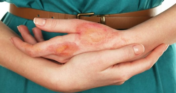 Токсико аллергическая сыпь