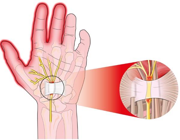Онемение пальцев рук. Причины и лечение. Народные средства, препараты в таблетках, мази, процедуры