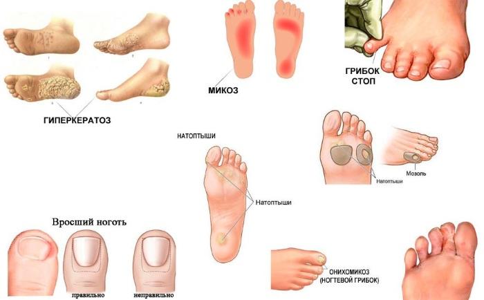 Трещины между пальцами ног, сухость кожи. Причины и лечение в домашних условиях