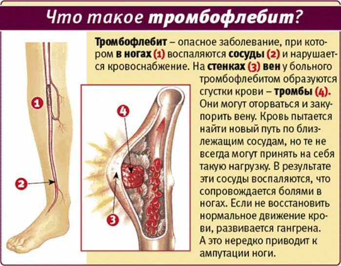 Тромбофлебит нижних конечностей. Симптомы и лечение мазью, народными средствами, препараты, питание. Прогноз