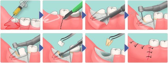 Болит десна в конце нижней челюсти - и отдает в горло, что делать, щека