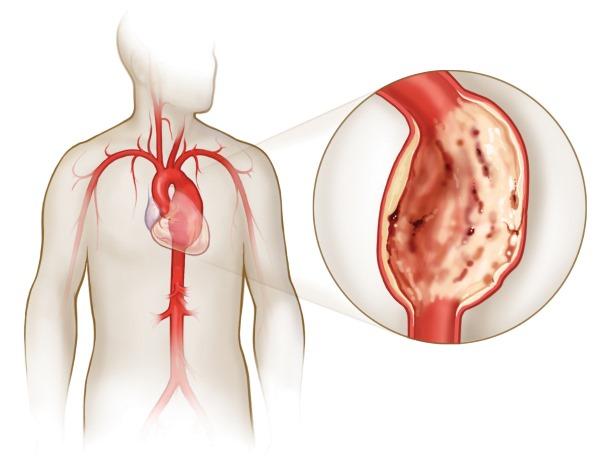 Жжение в области сердца. Причины за грудиной ощущение тяжести, боль. Что делать