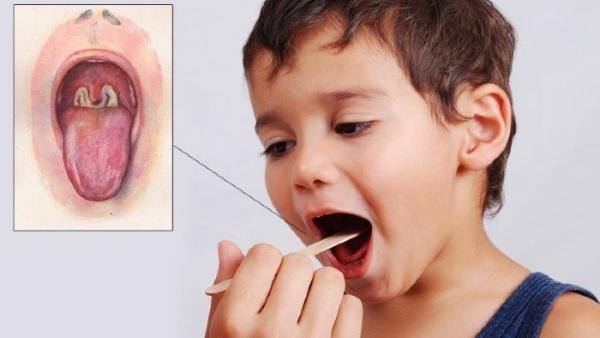 Золотистый стафилококк у ребенка, новорожденного. Симптомы эпидермальный, гемолитический. Как и чем лечить