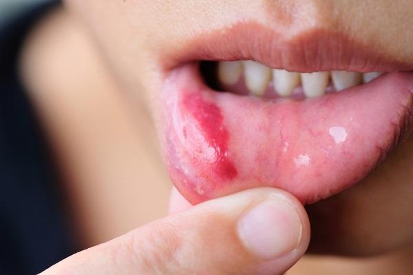 Стоматит горла, стоматит в горле, стоматит на горле, стоматит у детей в горле, стоматит в горле у ребенка