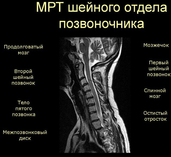 Болит шея сзади, слева, справа, сбоку. Причины, чем лечить