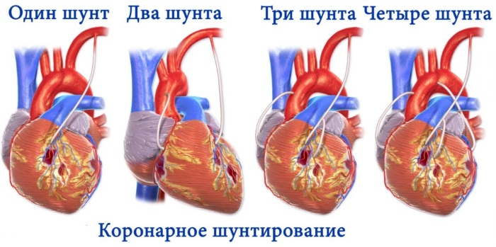 ЧКВ в кардиологии. Что это такое, как делается при инфаркте миокарда, кардиогенном шоке, остром коронарном синдроме