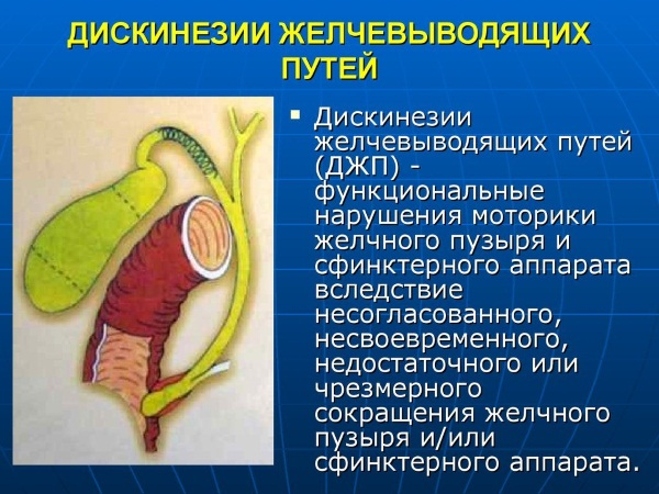 Дискинезия желчевыводящих путей. Симптомы и лечение препаратами, диета, клинические рекомендации для детей, взрослых