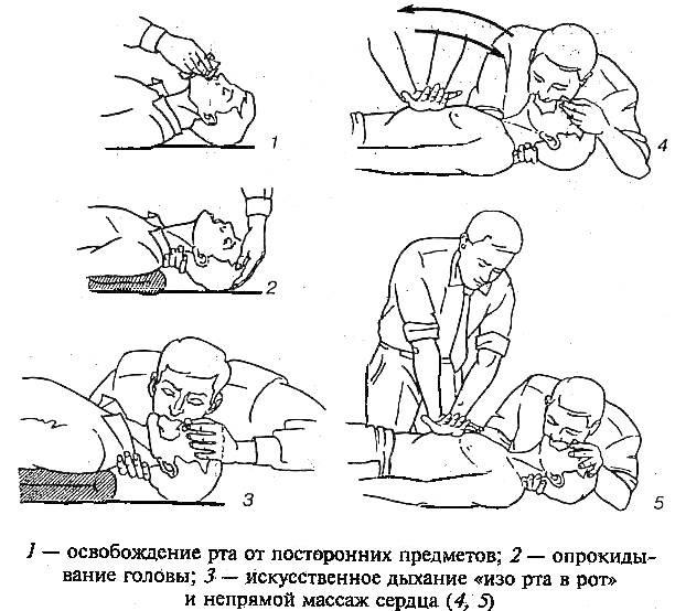 Дыхательная недостаточность. Классификация по степени тяжести у детей. Признаки, неотложная помощь, лечение