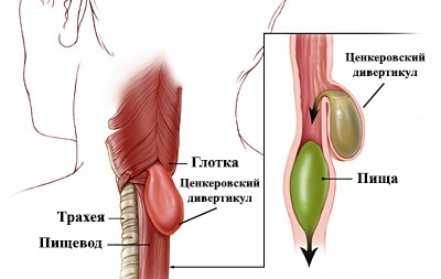 Эндоскопия желудка видеокапсульная. Что это, подготовка кишечника, алгоритм проведения. Цена процедуры