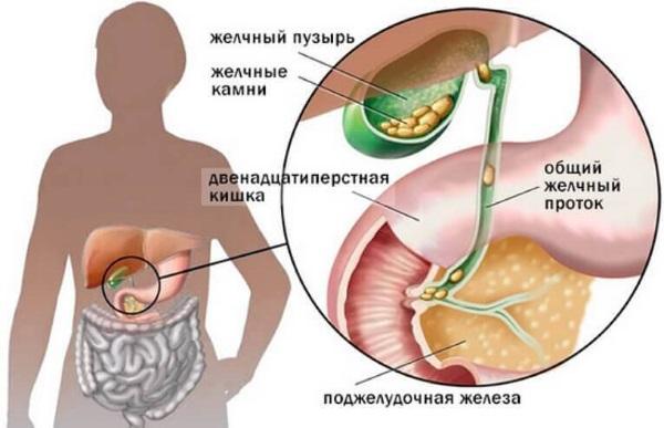 Симптомы и лечение холецистита. Народные средства, лекарства, диета, антибиотики, травы. Клинические рекомендации